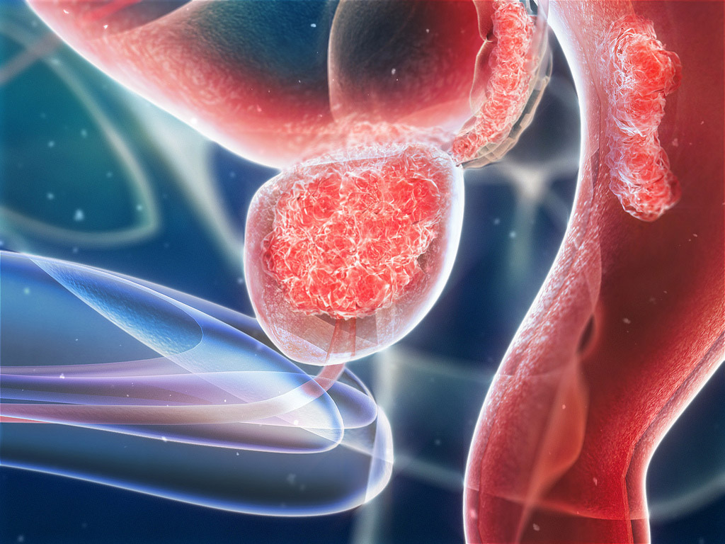 prostate cancer - original scientific reports and case studies Several scientific studies have had higher risk of prostate cancer, and prostate cancer case just return your purchase within 12 months of original.