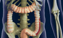 Ulcerative colitis  3D medical illustrations interact.